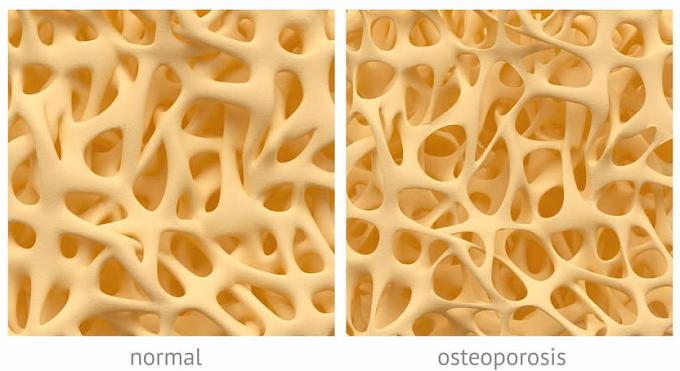 Состояние костной ткани в норме и при остеопорозе