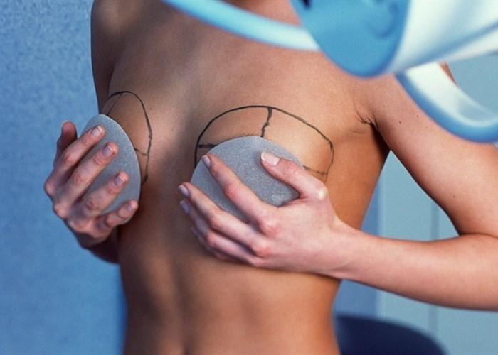 Увеличить грудь в клинике LaserOne в Киеве
