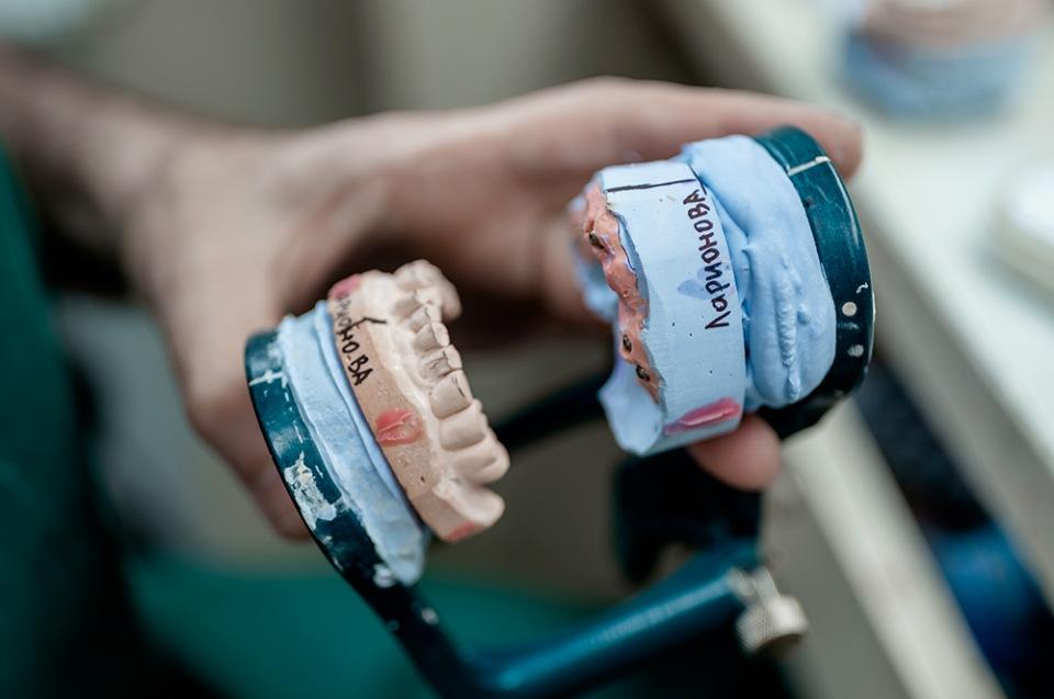 5 причин сделать протезирование зубов в клинике «ЭргоДент» в Калининграде